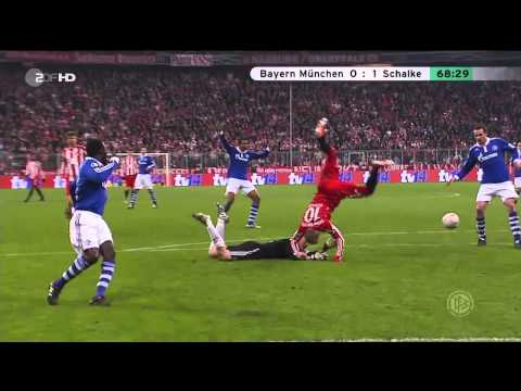 "Robben vs Neuer ""Bayern München 0-1 Schalke"" (DFB-Pokal 02.03.2011) ""HD"" (Kung Fu Kick)"