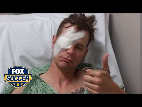 Fan gets glass eye with hand-painted Bayern logo on it | FOX SOCCER
